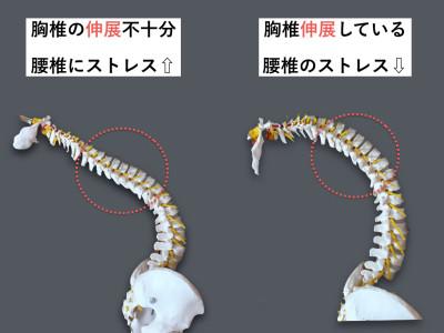 猫背と腰痛の関係