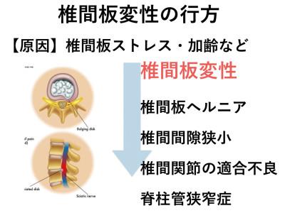 椎間板変性