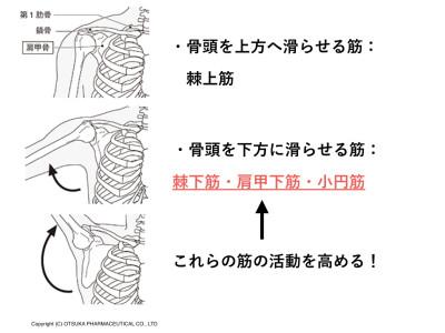 棘上筋損傷