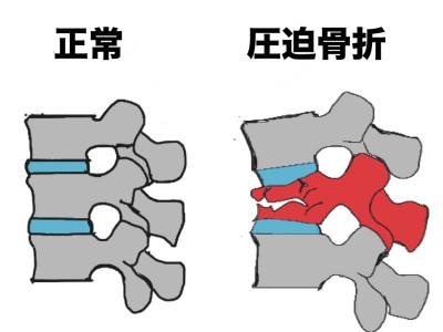 「腰 圧迫骨折」の画像検索結果
