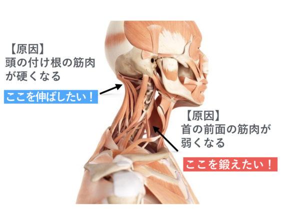 原因の筋肉と対策