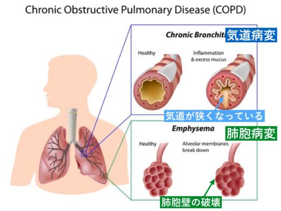 COPDの病態