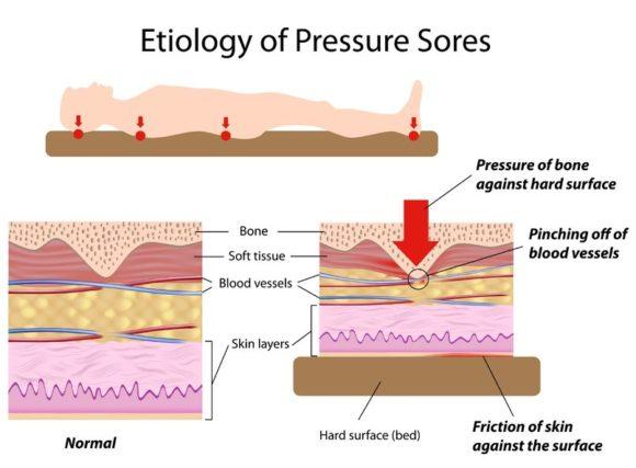 11271334 - etiology of pressure sores
