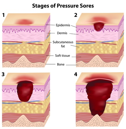 11271335 - stages of pressure sores