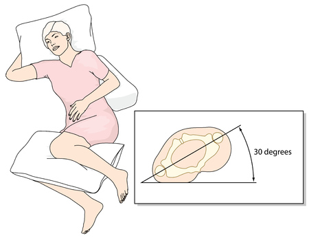 47927293 - position in bed to prevent the development of pressure ulcers. created in adobe illustrator.  eps 10